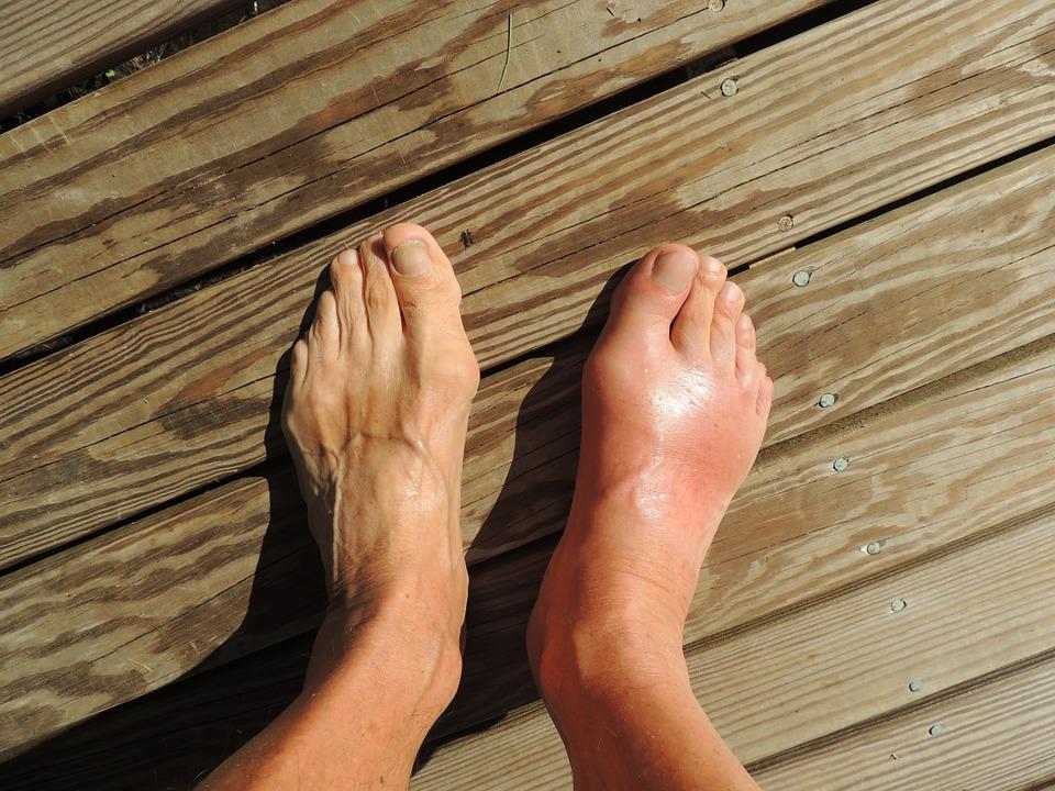 feet 174216 960 720_Centru_Nutritie